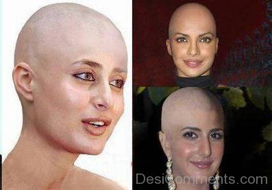 Bald Girls Of Bollywood